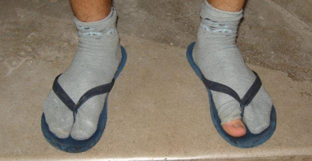 mengatasi bau kaki